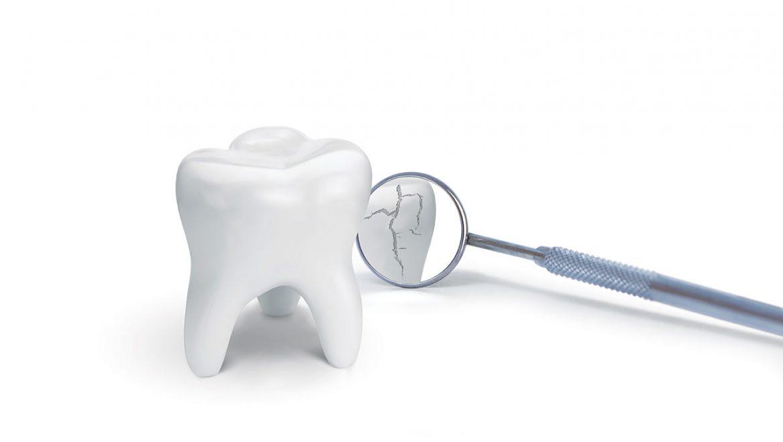 Zahnprophylaxe für Senioren