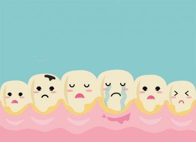 Was ist eigentlich Zahnstein und wie Sie ihn wieder los werden