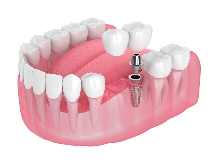 Sind Zahnimplantate geeignet, wenn nichts mehr hilft?